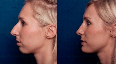 RHINOPLASTY SURGERY - ACTUAL RESULT After surgery we take a set of before and after images. On the left, the patient's nose as it presented itself during the pre-operative consultation. On the right, the actual post-operative result.