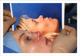 Surgery to correct a saddle depression of the nose: a good result.