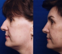 Before & After Nose Surgery 38