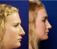 Before & After Nose Surgery 40