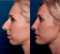 Before & After Nose Surgery 61